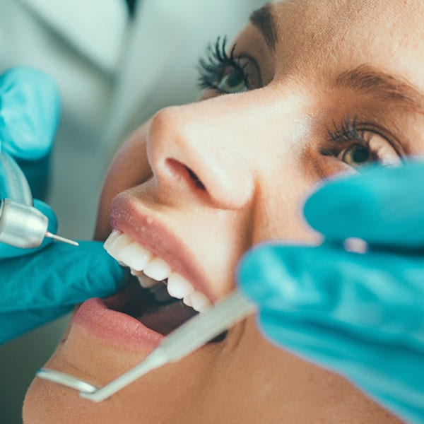 Cosmetic Bonding Services - Dental Clinic Bendigo