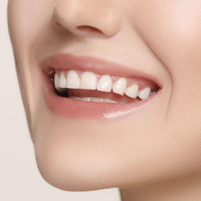 Cosmetic Dentistry Services - Dentist Bendigo