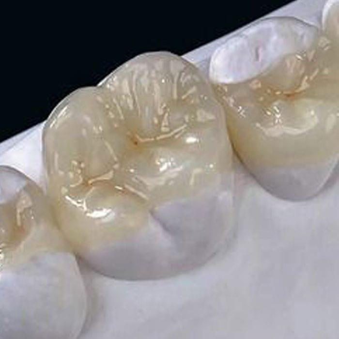 Inlays / Onlays Services - Dentist Bendigo