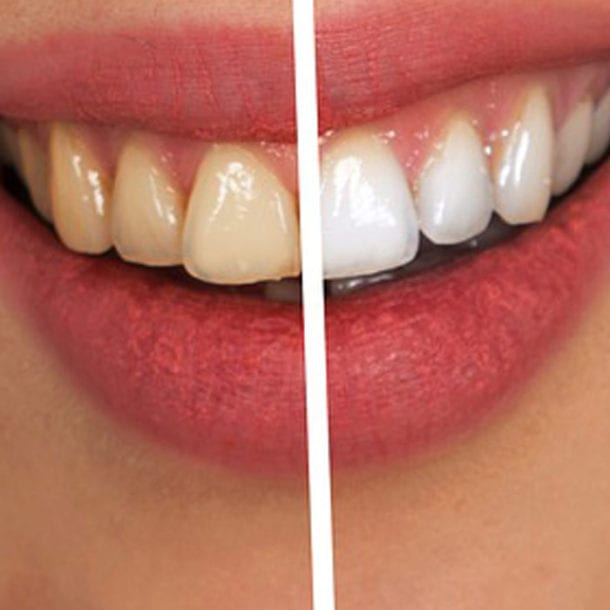 Teeth Whitening Services - Dentist in Bendigo